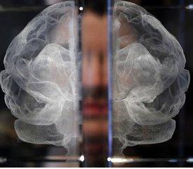 Действительно ли мужчины умнее женщин?. мозг