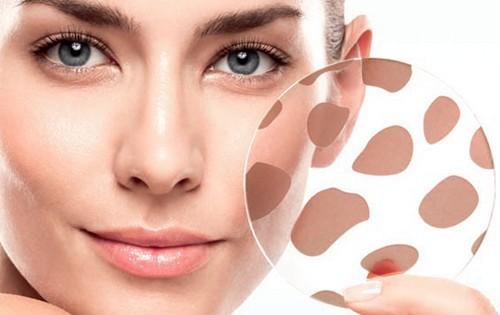 Советы косметолога. Как избавиться от пигментных пятен