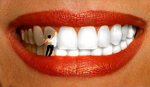 Методы отбеливания зубов. Отбеливание зубов
