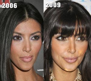 Новое лицо Ким Кардашян сделано руками хирургов
