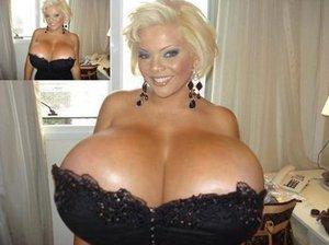 Врачи ампутировали самую огромную в мире грудь