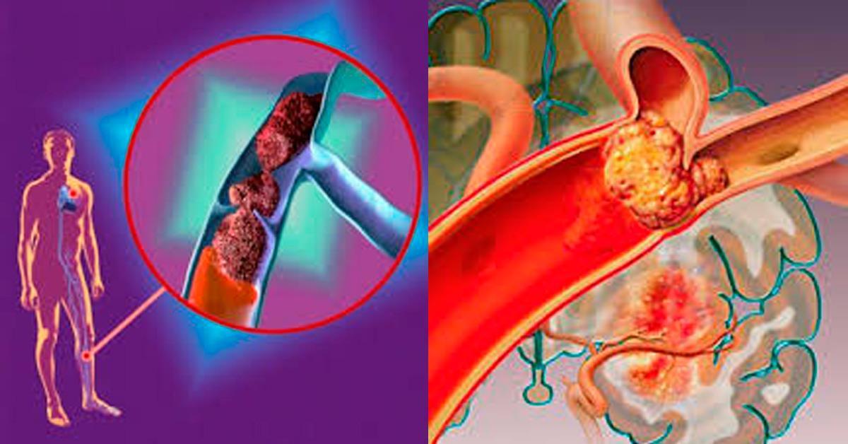 Семь признаков тромба