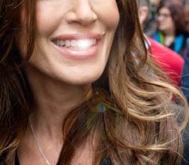 Секрет успеха - голливудская улыбка. 11395.jpeg
