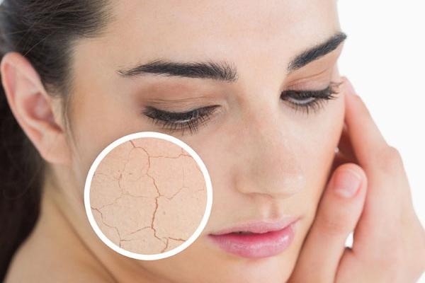 Как победить шелушение кожи лица?
