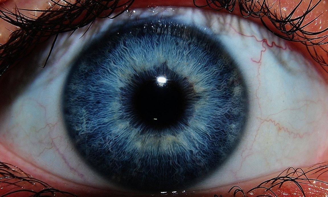 Надо ли ждать, когда катаракта созреет?