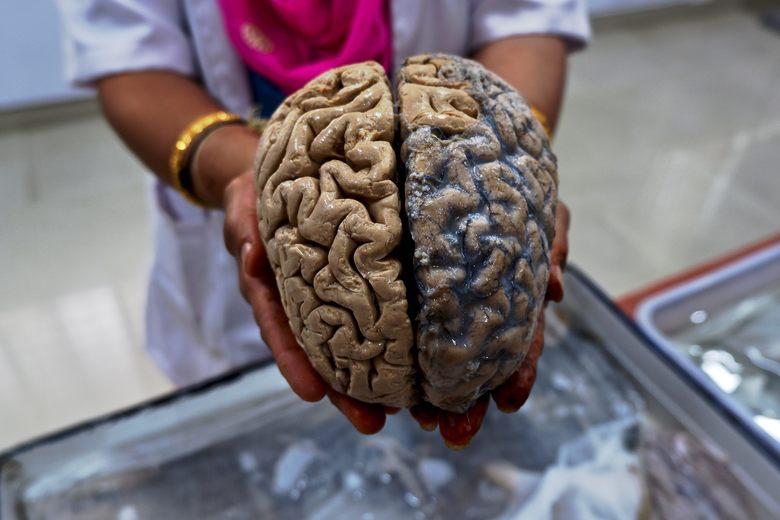 Жизнь связали с количеством нейронов