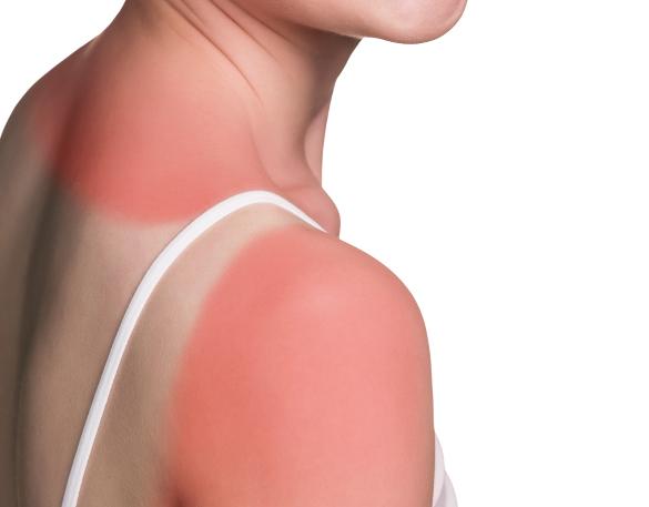 Скорая помощь при покраснении кожи