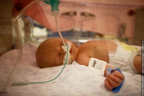 Ребенок пострадал из-за ошибки врачей